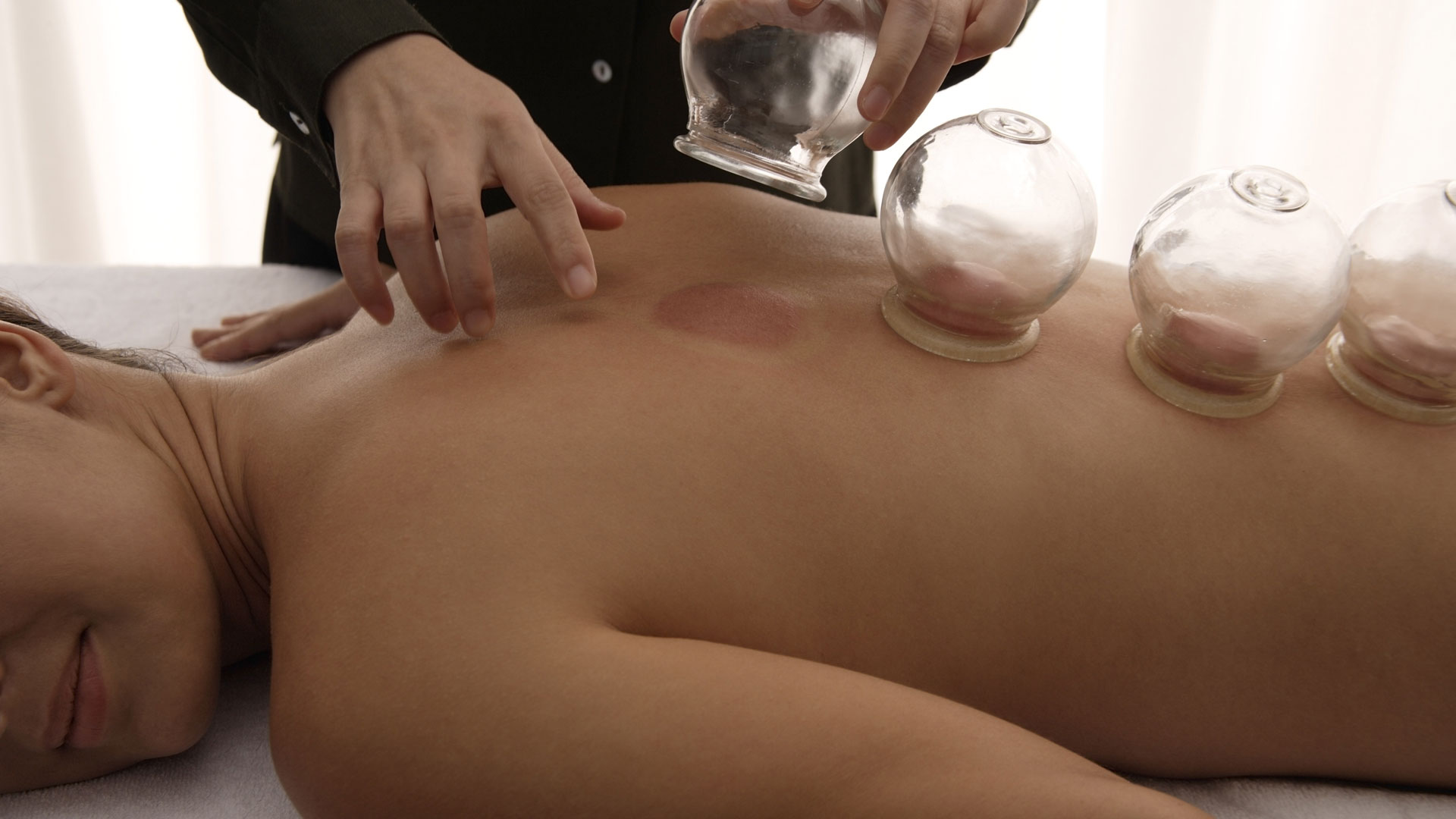 Cupping Therapy in Caloundra